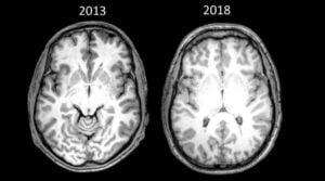 Brian Pennie - Brain Scan